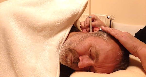 Ohrkerzenbehandlung